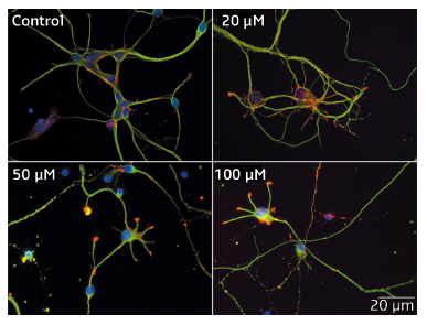 Impact of Mn2+ on the morphology of hippocampal neurons.