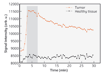 Temporal evolution of the MRI signal in tumour