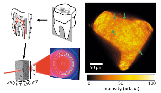 Slices cut from human teeth were used to create small pin-like bars which were mounted for diffraction-tomography