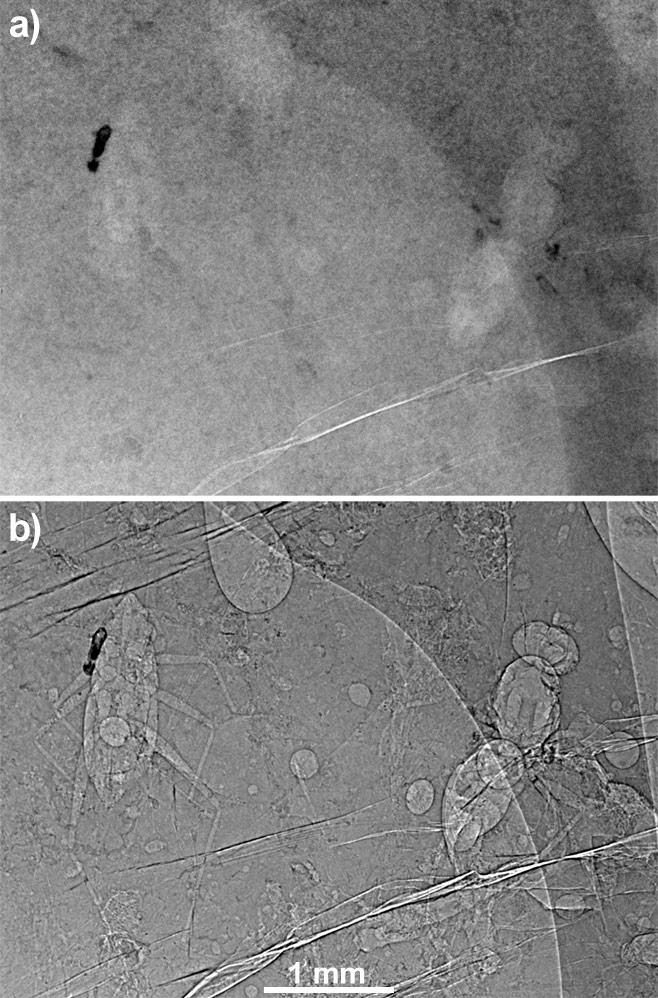 ambre_tomo_med.jpg (a) radiography of a bloc with inclusions in absorption...