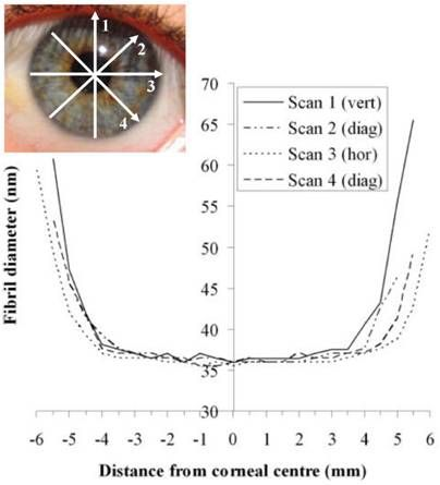 Corneas results composite