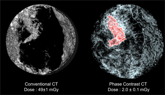 Comparison between a conventional CT scan of the breast sample and a scan using equally sloped tomography with phase contrast imaging.