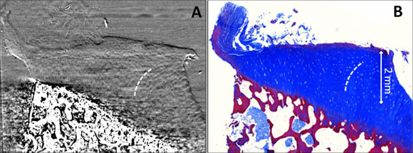 ABI-CT of osteoarthritic cartilage