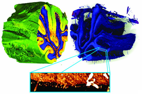 Three-dimensional false-colour renderings of a human cerebellum
