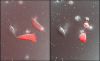 Light-induced killing of HeLa cells using KillerRed, visualised by fluorescence microscopy, before illumination on the left, after on the right (courtesy of J-P. Kleman, M4D Cell-imaging platform, IBS [5]).