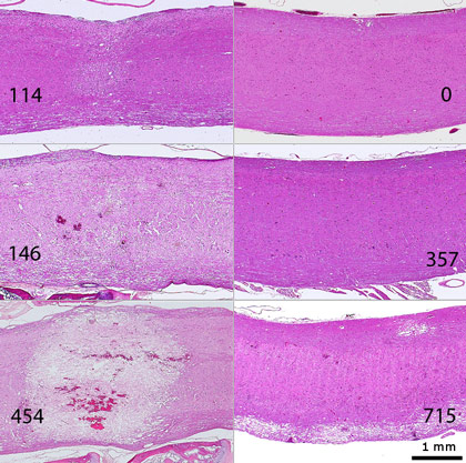 Spinal cord parasagittal sections: histopathological changes