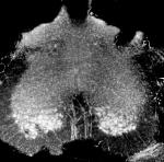 X-ray phase contrast microtomography of the lumbar-sacral region of the spinal cord (size: 1.2 mm)